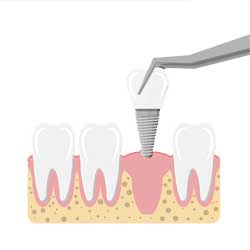 Specialist Prosthodontist